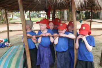 Nu er der mur omkring albinobørnene i Bukoba